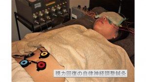 視力回復の自律神経調整鍼灸
