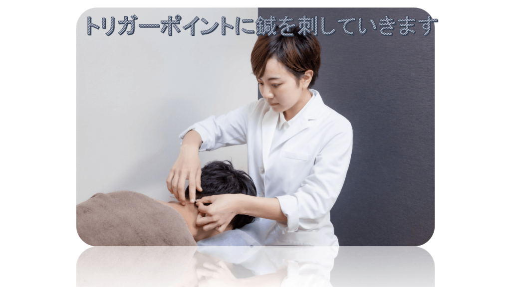 筋膜性疼痛の鍼治療