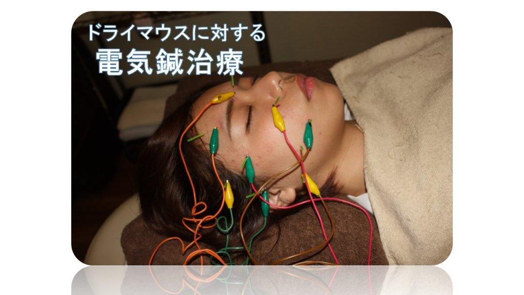 ドライマウスの電気鍼