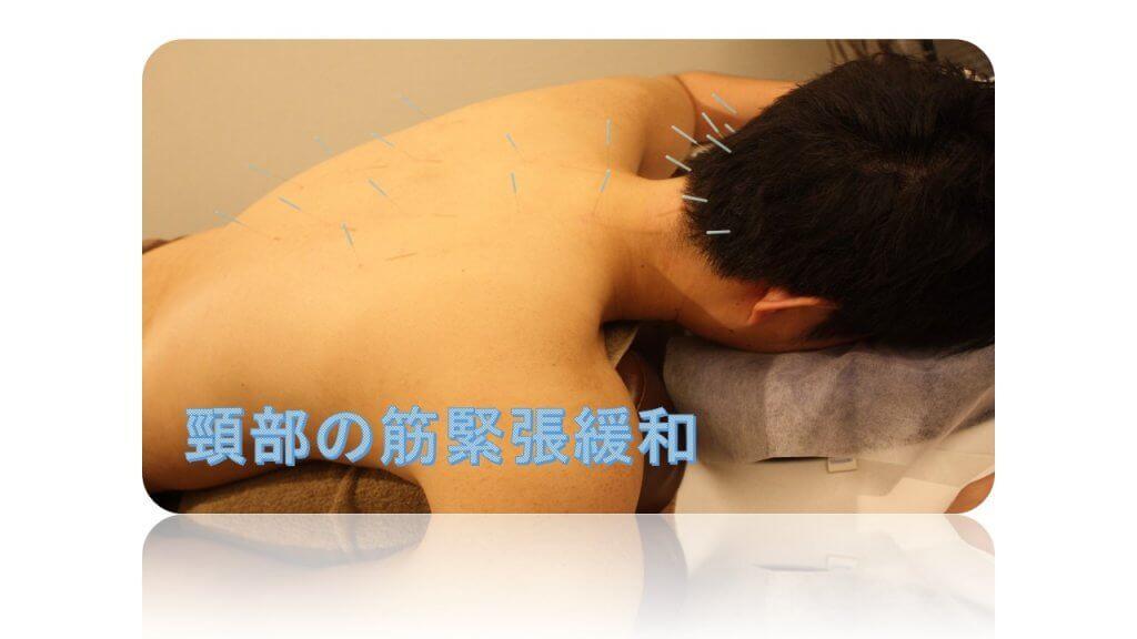 頭鳴りの頸部の筋緊張緩和