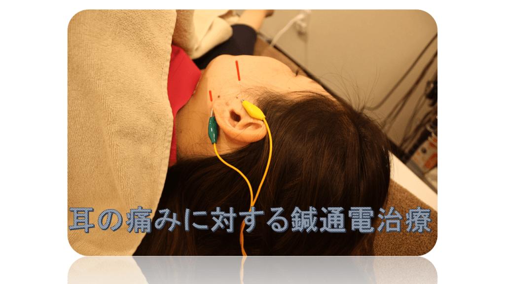 耳の痛みに対する鍼通電治療