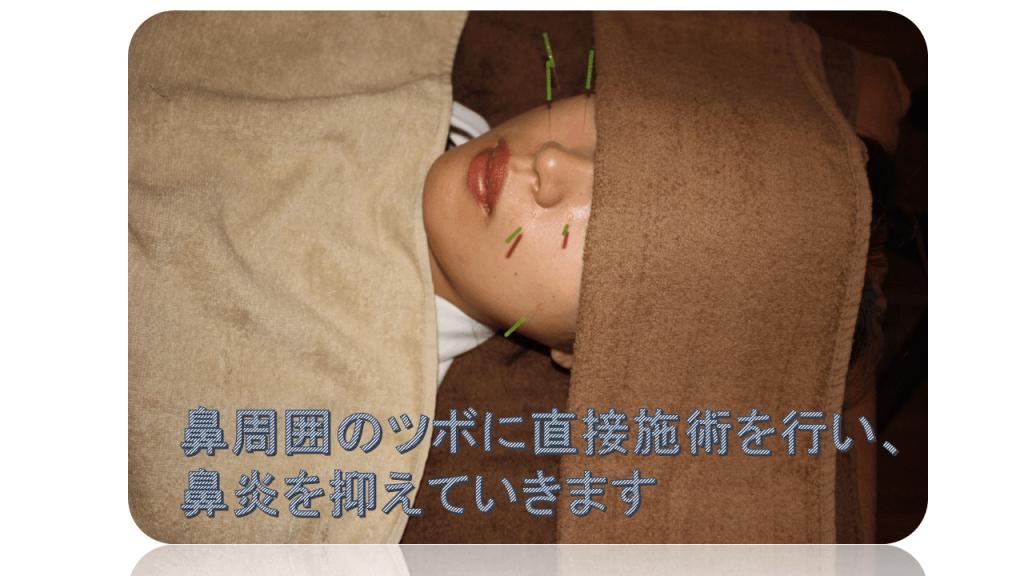 寒暖差アレルギー鼻炎鍼治療