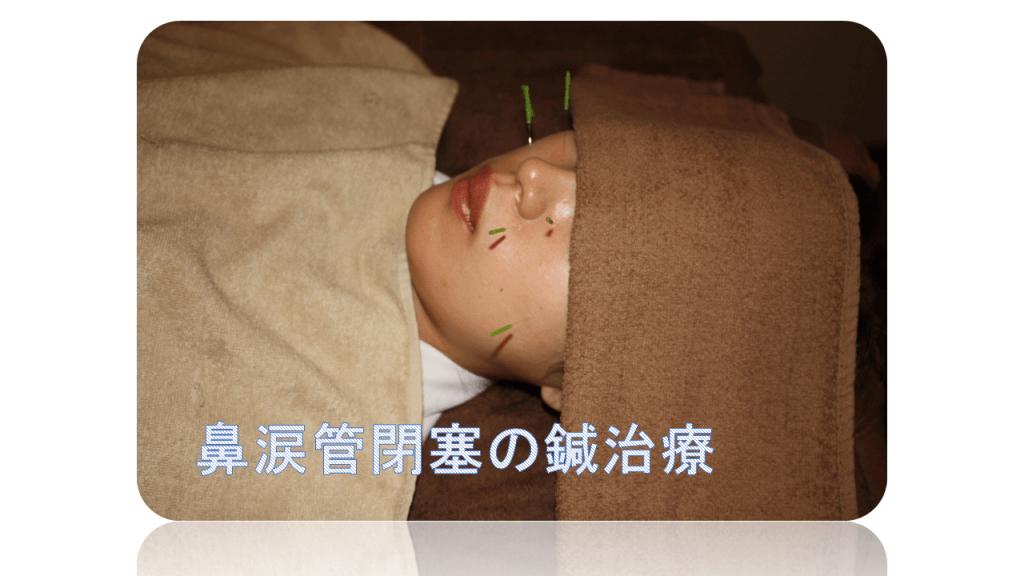 鼻涙管閉塞の鍼治療