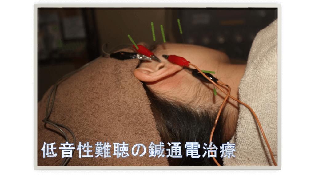 低音性難聴の鍼通電治療