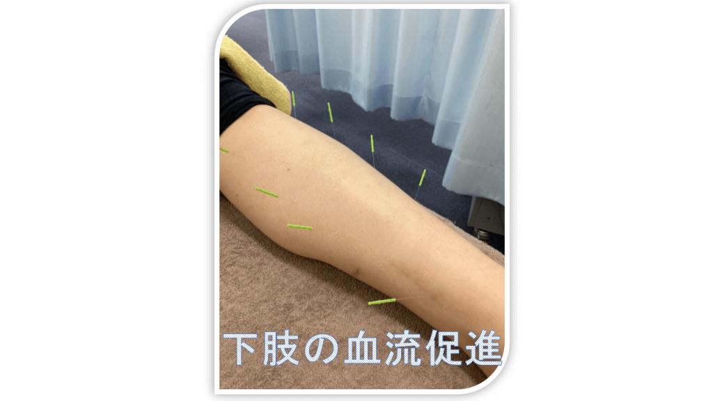 下肢の血流促進鍼灸
