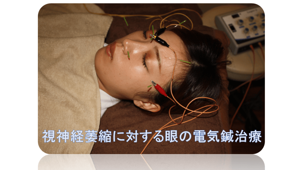 視神経萎縮に対する眼への電気鍼治療