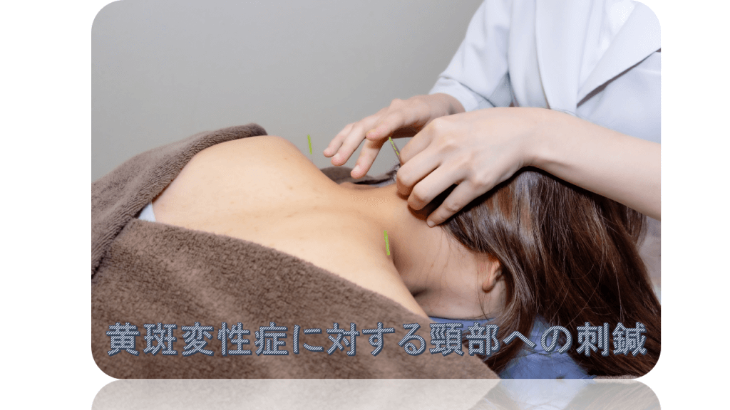 黄斑変性症に対する頸部への刺鍼